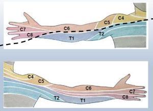 brachial dermatomes